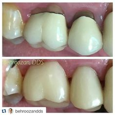 #Repost @behroozandds with @repostapp  Esthetics isn't just about your front teeth. Each time this patient smiled people would see these black metal rings by his gums. #ringaroundthecollar #nomoremetal #metalfree #esthetics #perfectfit #toxic #beautify #cosmeticdentistry #santamonica #3 #4 #healthychoices #progresspic #odontologia #visitus #emax #healthysmile #dentist by eomarquezgamez Our Cosmetic Dentistry Page: http://www.myimagedental.com/services/cosmetic-dentistry/ Google My Business…