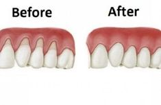 Bu Doğal tarifler ile çekilmiş diş etlerinizi geri getirin!
