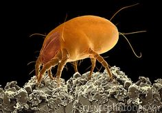 Dust mite. Coloured scanning electron micrograph (SEM) of a dust mite (Dermatophagoides pteronyssinus) resting on dust particles. Millions of dust mites inhabit the home, feeding on shed skin cells. They mainly live in furniture and carpets, and are usually harmless. However, their excrement and dead bodies can cause allergic reaction in susceptible people.