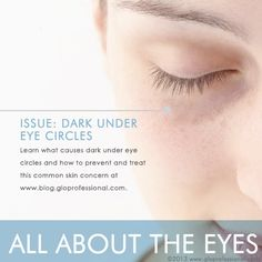 All About the Eyes: Dark Under Eye Circles