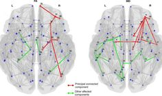 Our Parkinson's Place: Imaging links structural brain changes and cogniti...
