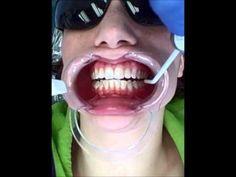Video of invisalign attachment bonding. Braces, Bond, My Style, Tips, Suspenders, Dental Braces, Counseling
