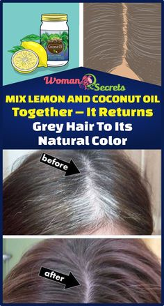 Mix Lemon And Coconut Oil Together – It Returns Grey Hair To Its Natural Color - hair - hair Natural Beauty Tips, Natural Hair Care, Natural Hair Styles, Grey Hair Natural Remedy, Natural Hair Treatments, Natural Remedies, Grey Hair Remedies, Home Remedies For Hair, Beauty Care