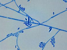 Fusarium oxysporum - Microconidia and a few Macroconidia (X100 LPCB: Nikon)