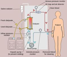 types of dialysis: Hemodialysis