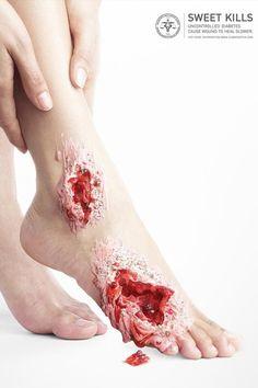 傷口からスイーツが溢れてくるよ。強烈なインパクトを放つ糖尿病に注意を促すキャンペーンポスター「Sweet Kills」(閲覧注意) : カラパイア