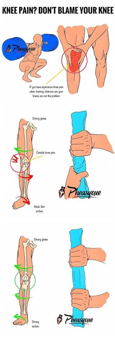Beneficial And Repairing Knee Strengthening Exercises For A Meniscus Tear – Fitness Lifestyle Common Knee Injuries, Knee Injury, Ankle Injuries, Running Injuries, Fitness Workouts, Knee Strengthening Exercises, Knee Stretches, How To Strengthen Knees, Preparation Physique