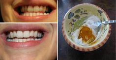 Tato domácí pasta vybělí zuby a odstraní otoky, paradentózu i bakterie