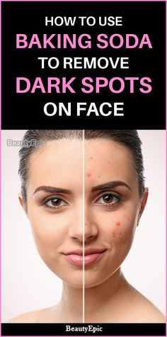 How to Use Baking Soda To Remove Dark Spots on Face