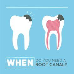 Si un diente se tornó gris de manera acelerada o si tienes dolor intenso en un diente de un día para otro, ¡es muy probable que requieras una endodoncia!  Nuestro especialista en Endodoncia te quitará el dolor y limpiará la infección en tu diente. ¡Pare de sufrir, hermano!