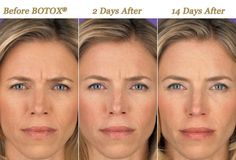 Phases of botox. Before, 2 days after injections and 14 day after injections 3 Phases of botox. Before 2 days after injections and 14 day after Phases of botox. Before 2 days after injections and 14 day after injections. Best Wrinkle Filler, Alternative Zu Botox, Facial Esthetics, Excessive Underarm Sweating, Botox Before And After, Botox Cosmetic, Botox Fillers, Botox Injections, Lips