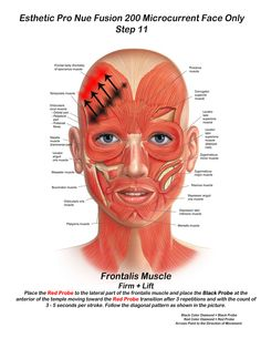 Skin for Life - Step 11, when performing Microcurrent...The frontalis muscle as we age becomes fatigue, so microcurrent helps to strengthen this muscle with increasing the sarcomeres activity with their division...