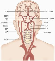 common arteries in brain | artery is a branch of the innominate artery and the left and right ...