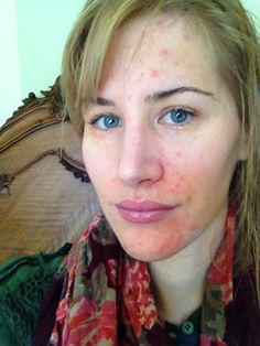 45e745d7926 Let's Start With A Success Story: How to Cure Perioral Dermatitis! Rosacea  Causes,