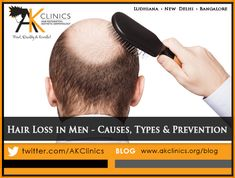 Suffering from hair loss? Are you one of them who is surfing internet to treat hair loss? Here are the best and proven hair loss treatments for men to restore their natural hair Hair Transplant In India, Hair Loss, Restore, Natural Hair Styles, Surfing, Men, Surf, Losing Hair, Surfs