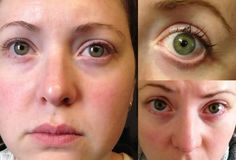 Eye floaters are more normal than you may might suspect and can influence both men and ladies at any age. These don't bring about torment and can be moderately innocuous in many cases, however they can be baffling and in extreme cases, will impede sight and genuinely affect personal satisfaction.