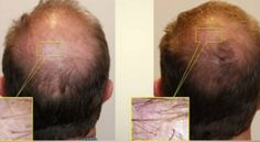 """Hair loss caused by hereditary causes can be managed and treated through The Food and drug administration (FDA) approved drugs such as Rogaine that is sold under the brand name of """"Minoxidil"""" and Propecia that is sold under the brand name of finasteride.Read for more information."""