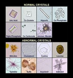 Medical Laboratory and Biomedical Science: Chrystals in Urine