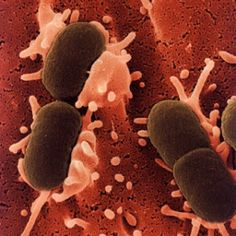 Bacteria that causes unitary tract infections