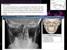 Imaging in maxillofacial trauma patient Shivani gaba JR-III,OMFS 1 Paranasal Sinuses, Maxillary Sinus, Soft Tissue Injury, Medical Jokes, Optic Nerve, Study Inspiration, Three Dimensional, Trauma