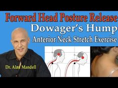 Leading Chiropractic Exercise for Hunchback and Forward Head Carriage - Dr…