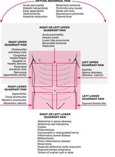 16 of the most common types of abdominal pain healthhealing regions of abdominal pain and what they may indicate ccuart Images