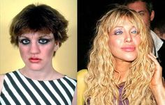 Wallpaper of 5 - Check out pictures of Courtney Love before and after plastic surgery. You decide if the cosmetic surgery operation was good or bad for Courtney Love. Lip Plastic Surgery, Bad Plastic Surgeries, Plastic Surgery Gone Wrong, Plastic Surgery Photos, Celebrity Gossip, Celebrity Photos, Top Celebrities, Celebs, Cheek Implants