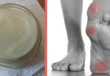 Make This Magnesium-Based Lotion and you can Reduce Joint Pain and Muscle Aches - Health Lotion Recipe, Magnesium Oil, Arthritis Remedies, Leg Pain, Muscle Pain, Alternative Health, How To Fall Asleep, Natural Remedies, Health And Wellness