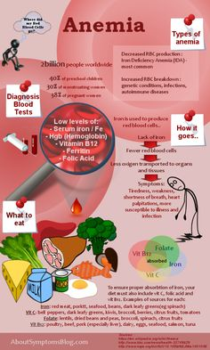Iron Deficiency Anemia - symptoms and solutions Infographic
