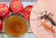 Can Apple Cider Vinegar Stop Mosquito Bites from Itching? Stop Mosquito Bite Itch, Mosquito Bite Relief, Castor Oil Benefits, Canned Apples, Top 10 Home Remedies, Insect Bites, Apple Cider Vinegar, Canning, Health