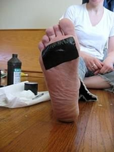 You can try healing the wart with duct tape. Does it sound ridiculous? It won't hurt if you try it. Let us know about the result!