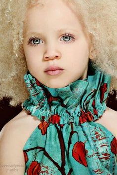 Bela combinação de cores na pele africano albino americano e cabelo