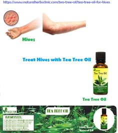 Tea Tree Oil for Hives - Natural Essential Oils - Natural Herbs Clinic