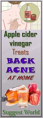 Treat the back acne quickly and effectively!