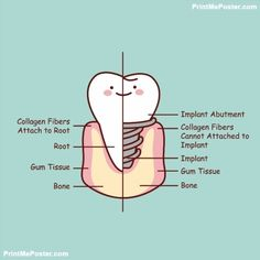 Illustration about Cute cartoon tooth implant anatomy , great for health dental care concept. Illustration of dentist, denture, implantation - 69084339 Dentist Cartoon, Nurse Cartoon, Dental Hygiene School, Dental Life, Dental Teeth, Teeth Implants, Dental Implants, Dental Pictures, Dental Posters