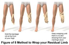 """Pictures of """"Figure of method for wrapping a residual limb (below knee amputation) Physical Therapy School, Physical Therapist, Occupational Therapy, Prosthetic Device, Prosthetic Leg, Below The Knee Amputation, Orthotics And Prosthetics, Athletic Training, Physics"""