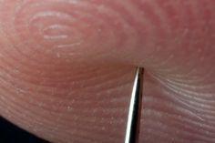 AVC - Veja como salvar uma pessoa de um AVC utilizando uma agulha!