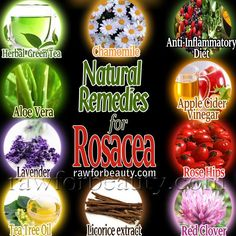 DIY Rosacea Remedies ~ Natural remedies for rosacea. I know so many people that have Rosacea and it seems like it is frustrating. Acne Rosacea, Natural Remedies For Rosacea, Rosacea Remedies, Herbal Remedies, Health Remedies, Herbal Green Tea, Green Tea Diet, Beauty Secrets, Rosacea