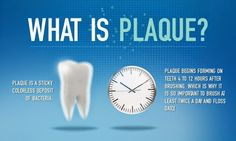 What Is Plaque A Sticky Colorless Deposit Of Bacteria Begins Forming