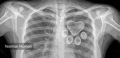 Mis radiografias de Corazón.