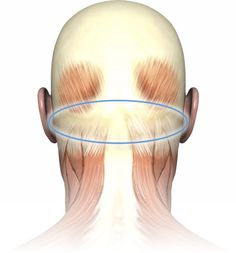 Trigger Point Therapy -  Triggers in the sub-occipital muscle group are a common cause of tension headaches.