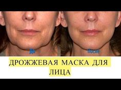 Как быстро омолодить лицо на 5-10 лет без шприца и скальпеля. - YouTube Face Exercises, Helpful Hints, Therapy, Hair Beauty, Skin Care, Diet, Youtube, Cream, Health