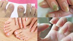 Acabe com os fungos nas unhas com essa dica – Receita Fácil | DICAS DE TUDO Acrylic Nails At Home, Diy And Crafts, Manicure, Make It Yourself, Youtube, Blog, Soft Hair, Baking Soda