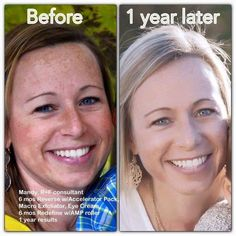 Our Reverse Regimen reverses the damage caused by the sun!