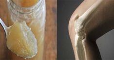 Лекарите изумени! Древна гръцка рецепта спасява от болки в ставите, костите, остеопороза и влошен метаболизъм | Здравни новини, статии, съвети, публикации | Здравни новини, съвети, статии, публикации, изследвания