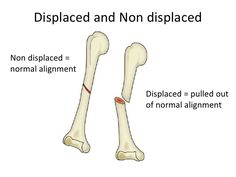 Difference between Displaced and Non displaced fractures.