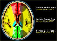 Brain Ischemia - Vascular territories