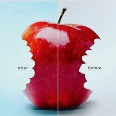 Before and after dental care  #dentalsecrets