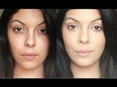How To Cover Brown Spot And Sun Damage On Your Face – Stonegirl