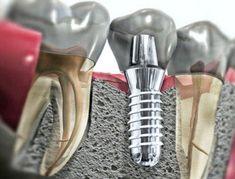 Установка зубных имплантов: что такое и как не дать себя одурачить